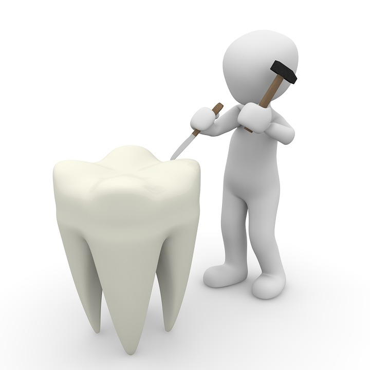 Estimating Cosmetic Dentistry Costs For Various Dental Procedures