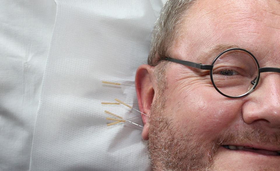 Acupuncture New Brighton Services