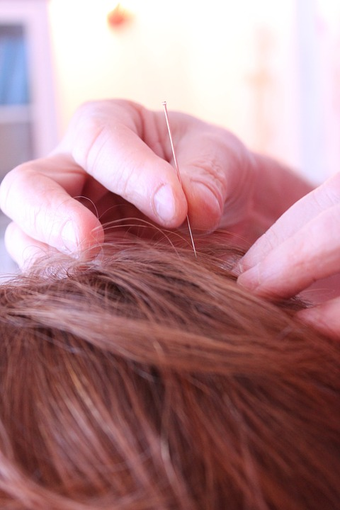 Acupuncture For Acne Treatment