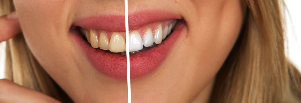 Top Teeth Whitening Misconceptions