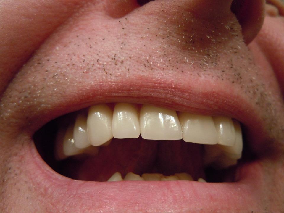 The Best Complete Dentures Brisbane North Options