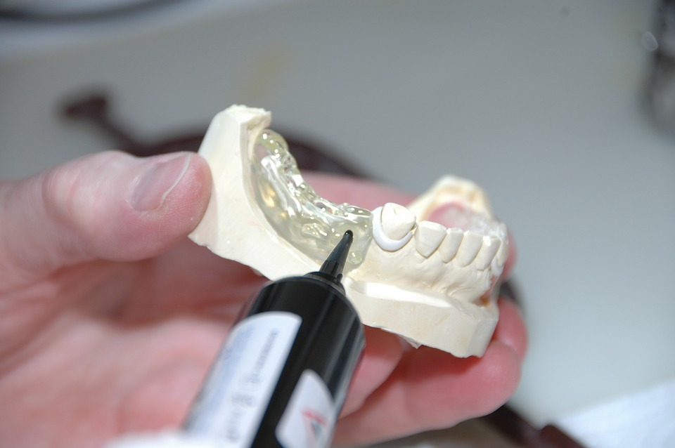 Why Dental Labs Are Important