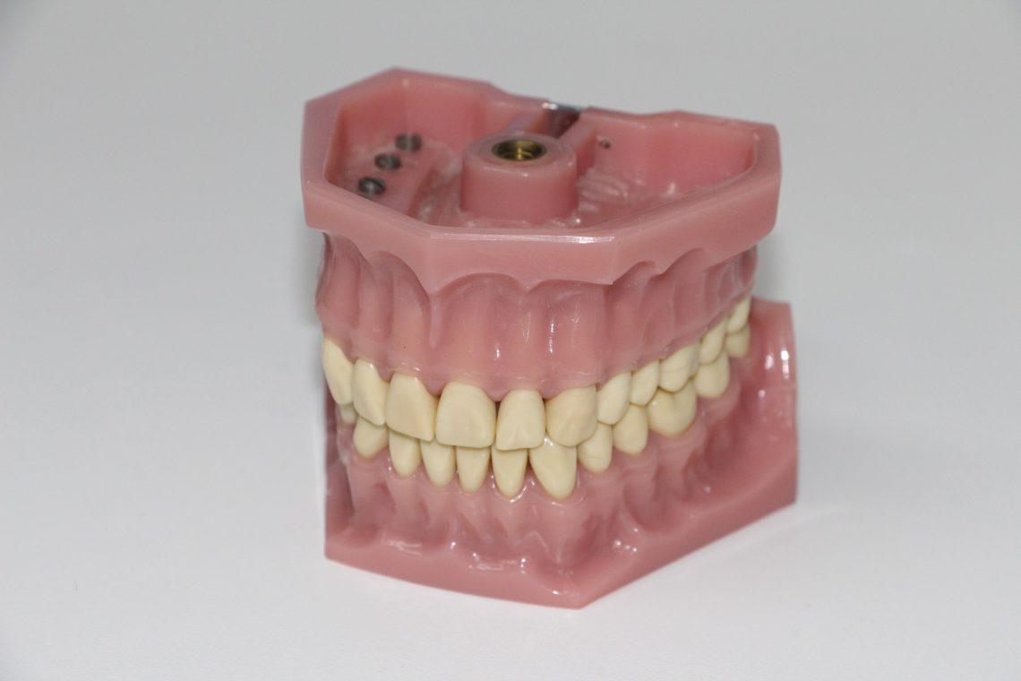 Choose Partial Dentures In Brisbane North For A Renewed Smile