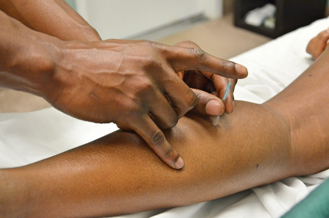 Acupuncture Richmond – How Chinese Medicine Can Help You