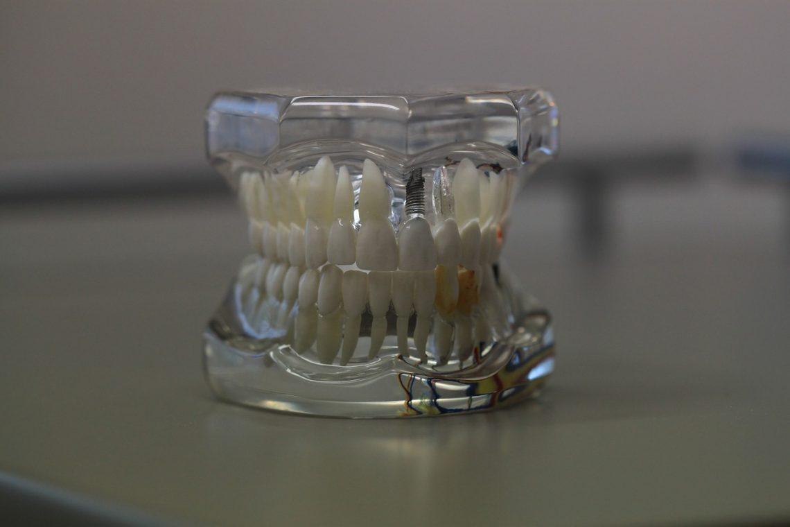 Benefits Of Partial Dentures In Brisbane North